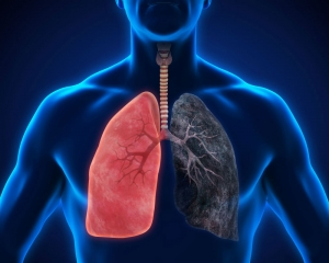 AI can identify lung cancer type