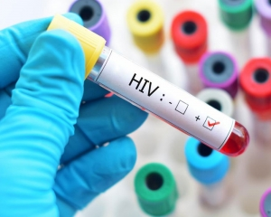 Researchers develop affordable cellphone-based tool to detect HIV