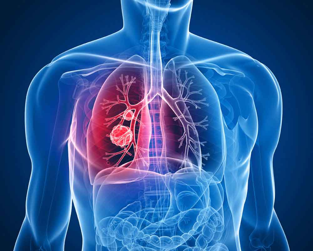Google AI can better predict lung cancer