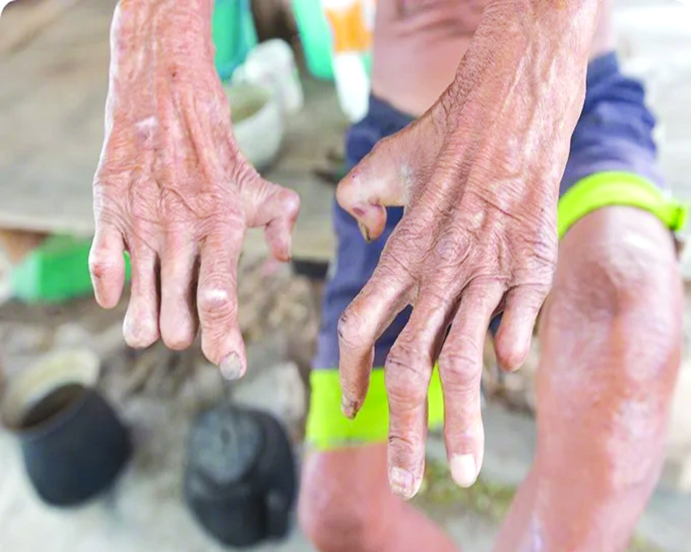 Leprosy must not be forgotten amid the pandemic